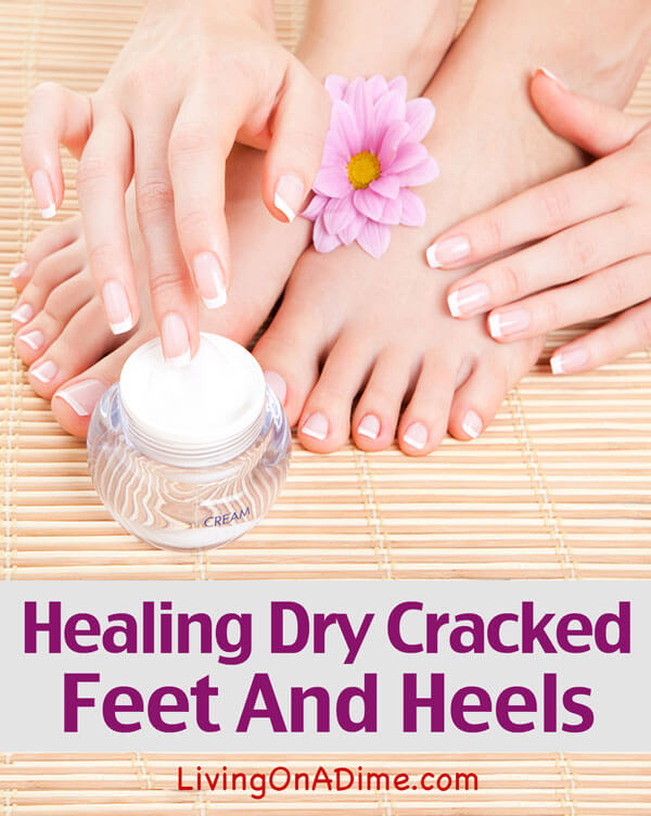 Here's an easy way to healing dry cracked feet and heels using two simple things you can find at any discount store. I'm so glad I found it and I hope it helps you, too!