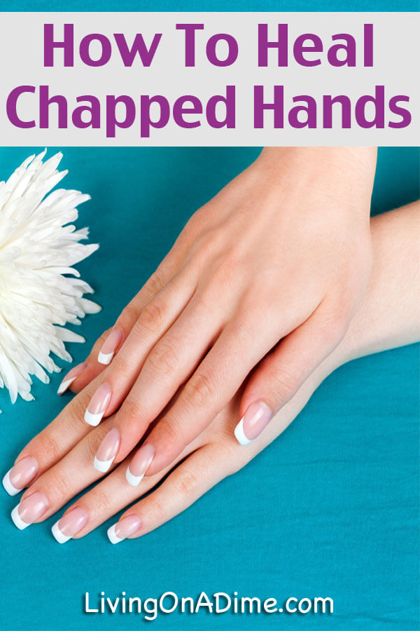 How To Heal Chapped Hands - Natural Recipe For Winter Dry Skin