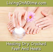 Healing Dry Feet And Cracked Heels