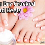 How To Heal Dry Feet And Cracked Heels